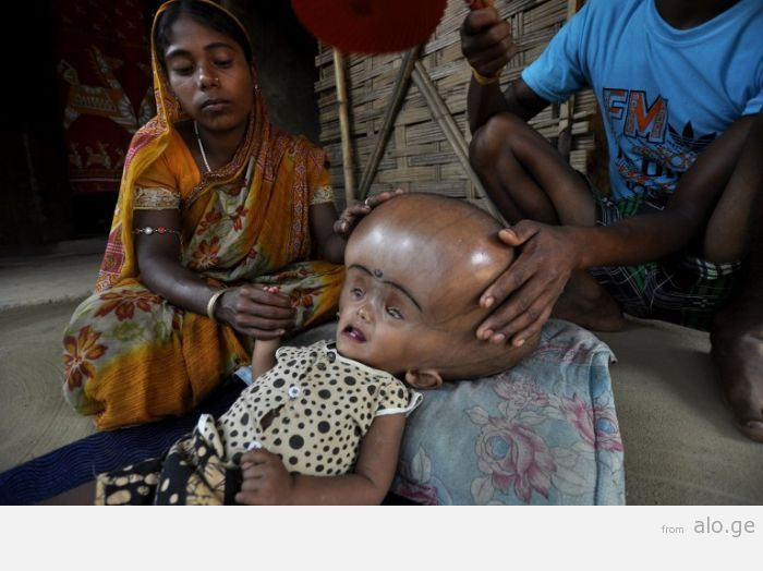INDIA-CHILD-HEALTH-ILLNESS-HYDROCEPHALUS